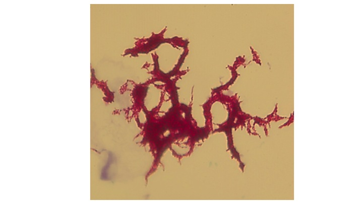 Corded TB acid fast stained by Ziehl-Neelsen method