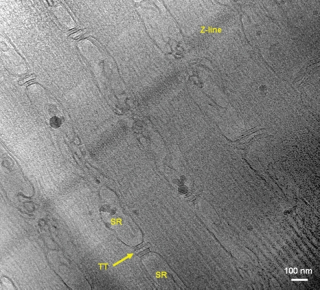 Cryo-TEM image of a FIB-thinned lamella of skeletal muscle tissue