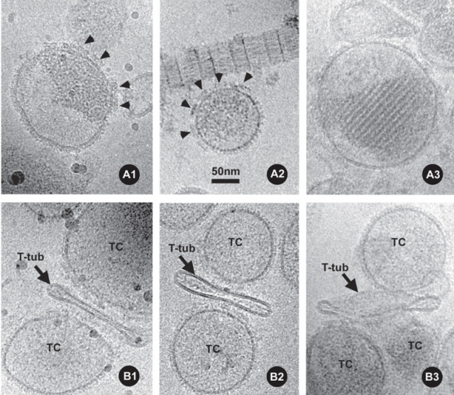 Selected examples of frozen-hydrated isolated TC vesicles and triads