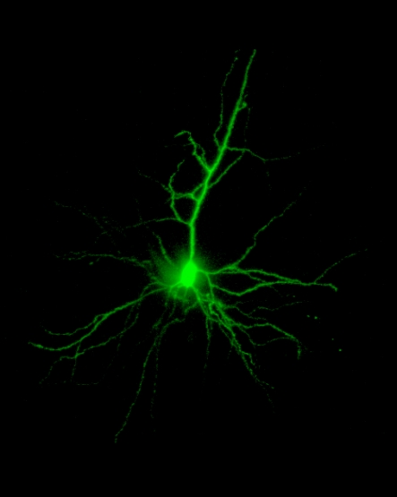 A neonatal rat pyramidal neuron filled with Lucifer Yellow