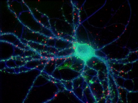 A multi-wavelength, three dimensional, wide-field immunofluorescence image of a fixed neuron
