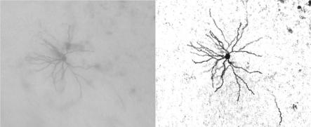 Neuron imaged in bright field mode (left) and the same neuron after deconvolution (right).